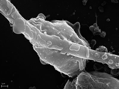 SEM micrograph of an in vitro infection of human neutrophils with C. albicans showing a neutrophil that tries to engulf a hyphae (thin structure crossing the image)